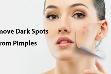 Remove Dark Spots from Pimples