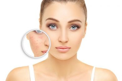 Steps to skincare to hide acne skin properly at home