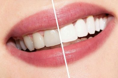 Teeth Whitening At Home Is Fastest And Most Effective